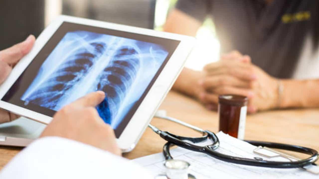 Videogiochi nel trattamento della malattie polmonari